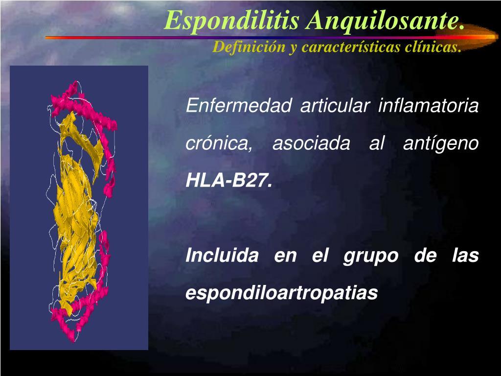 Espondilitis Anquilosante.