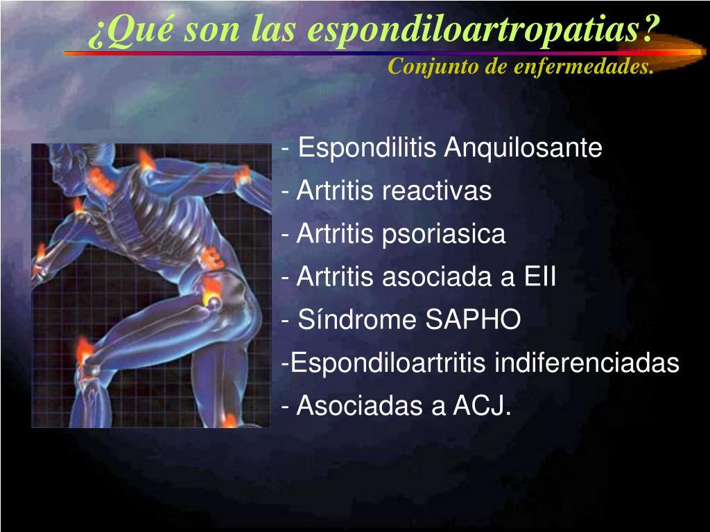 ¿Qué son las espondiloartropatias?
