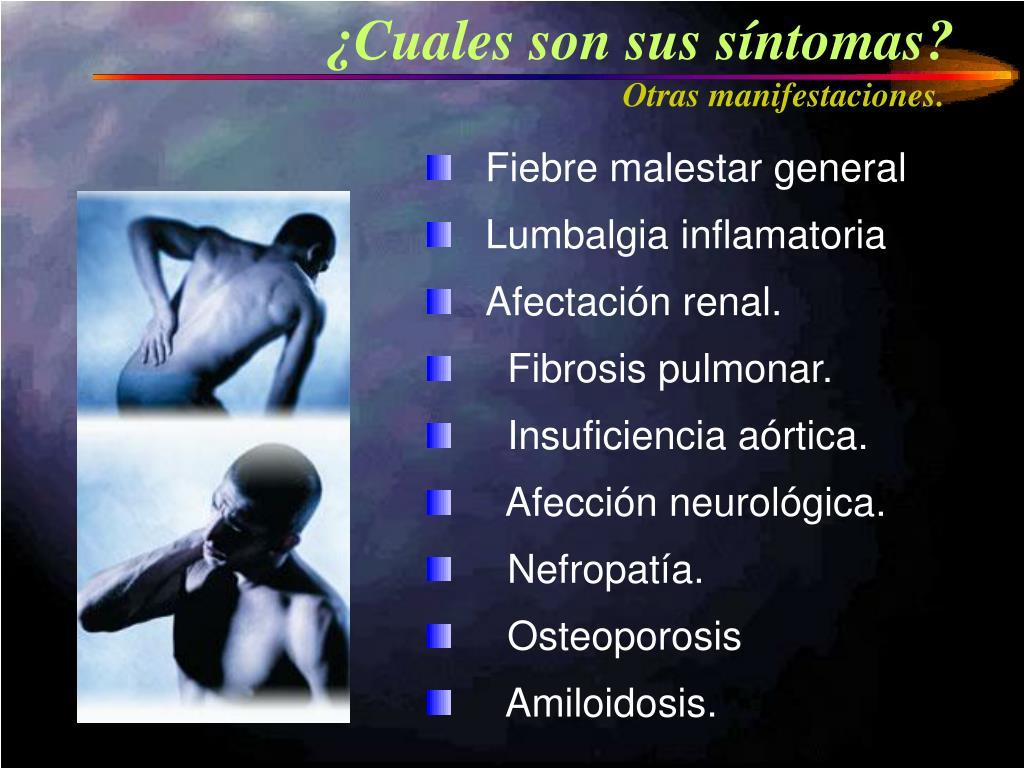 ¿Cuales son sus síntomas?