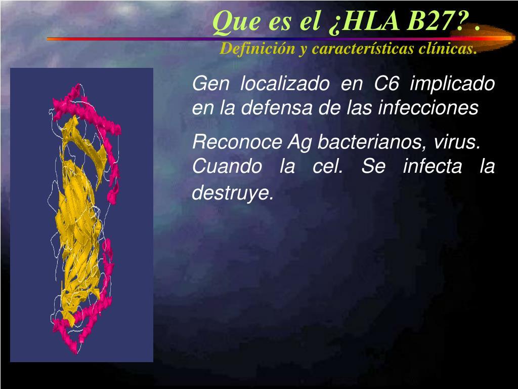 Que es el ¿HLA B27?