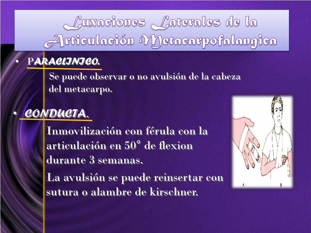 Luxaciones Laterales de la Articulación Metacarpofalangica