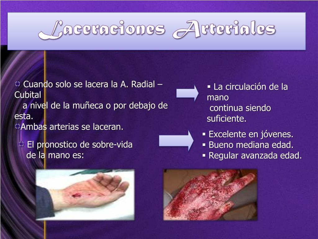 Laceraciones Arteriales