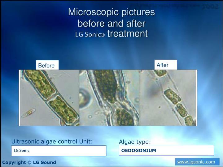 Microscopic pictures