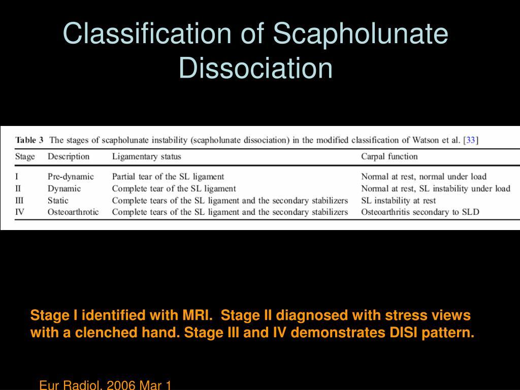 Classification of Scapholunate Dissociation