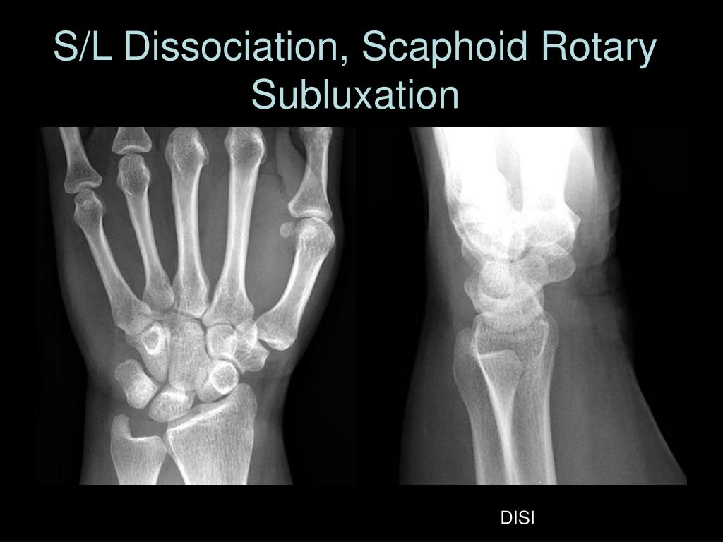 S/L Dissociation, Scaphoid Rotary Subluxation
