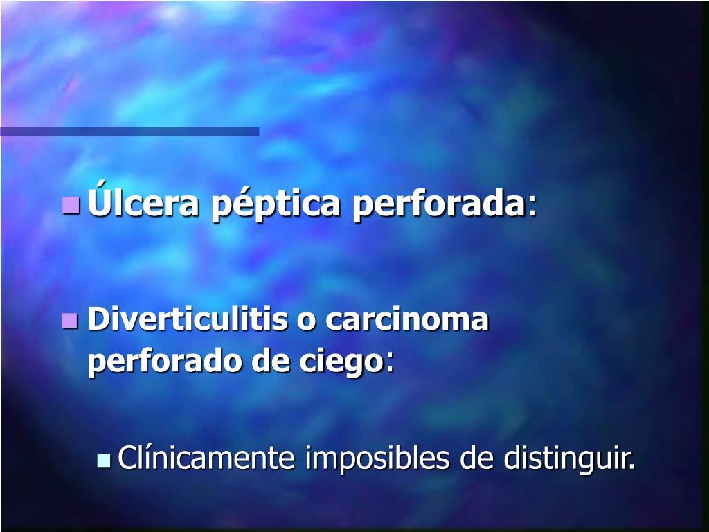 Úlcera péptica perforada