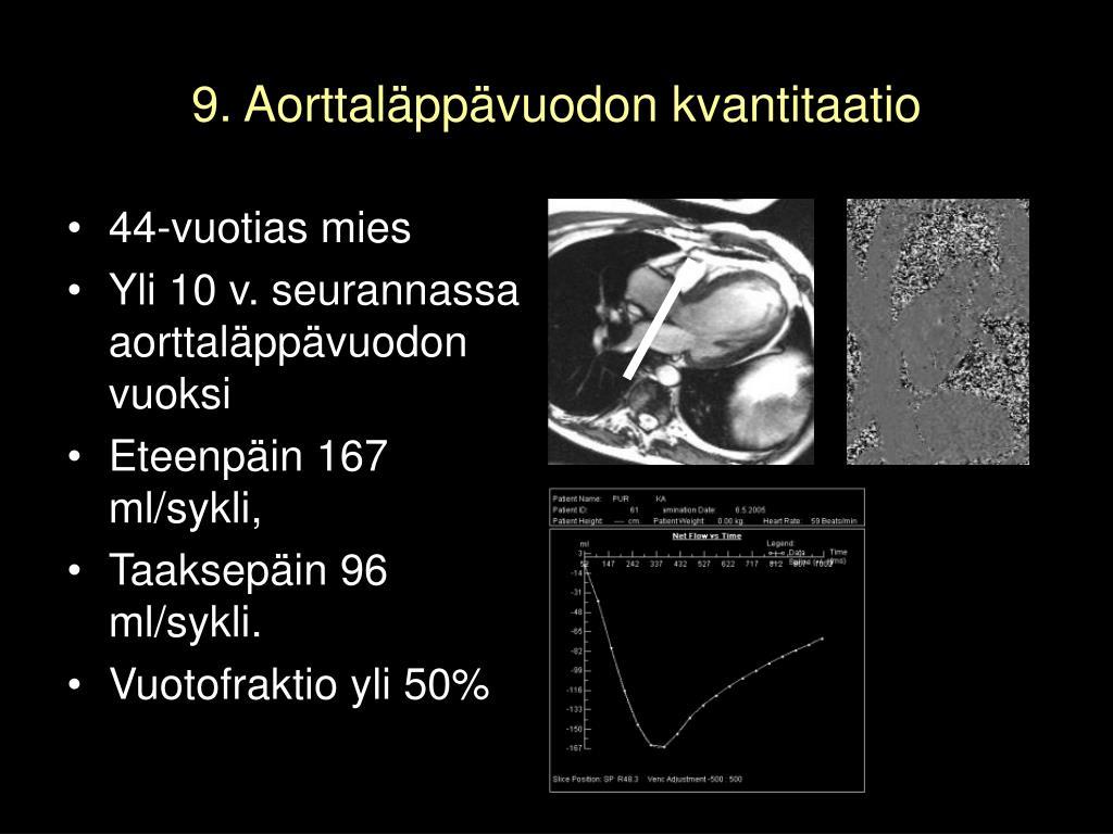 9. Aorttaläppävuodon kvantitaatio