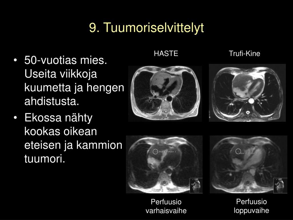 9. Tuumoriselvittelyt