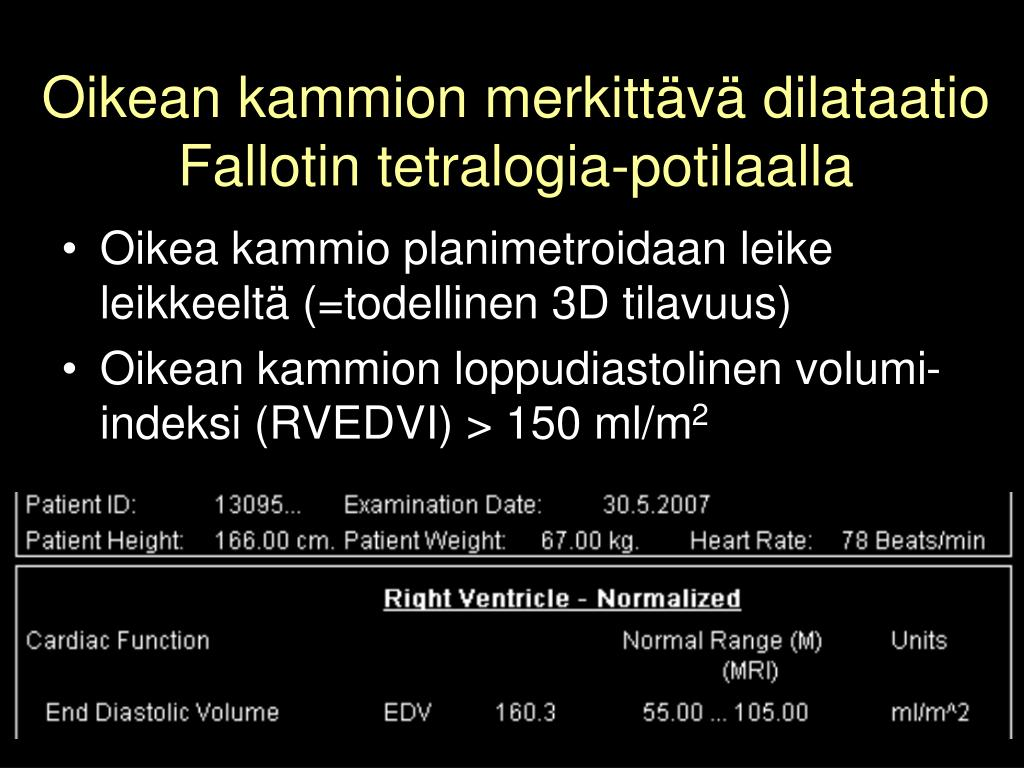 Oikean kammion merkittävä dilataatio Fallotin tetralogia-potilaalla