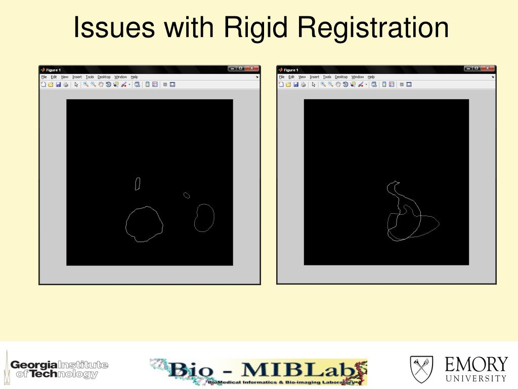 Issues with Rigid Registration