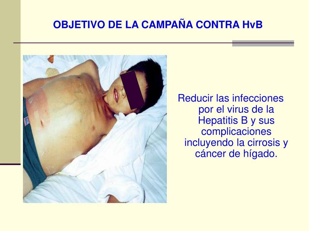 OBJETIVO DE LA CAMPAÑA CONTRA HvB