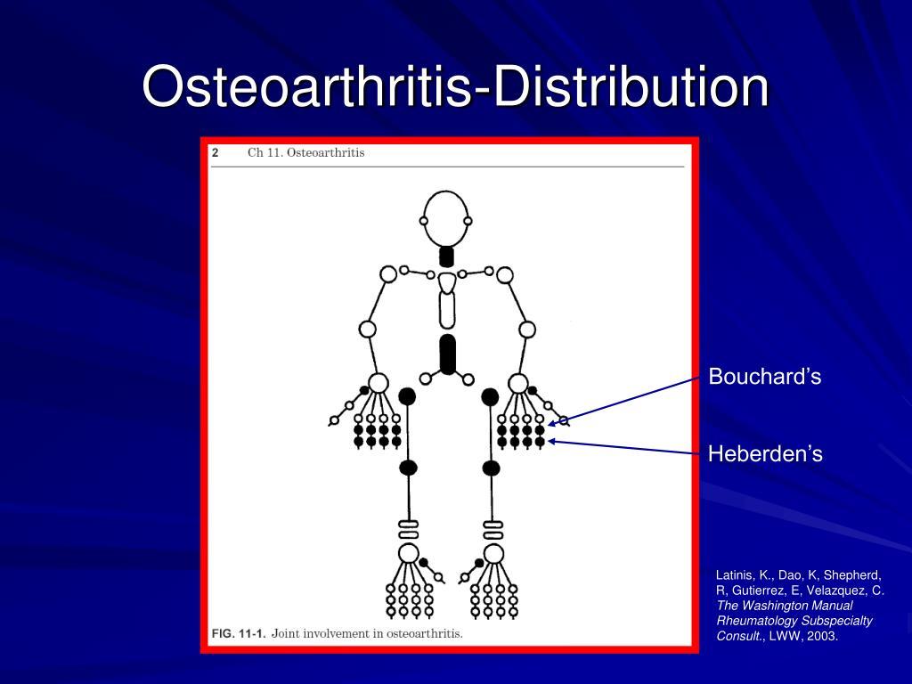 Osteoarthritis-Distribution