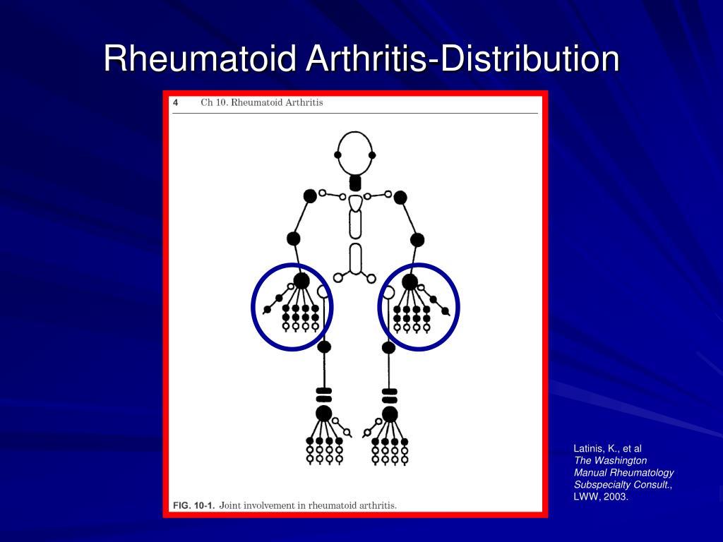 Rheumatoid Arthritis-Distribution