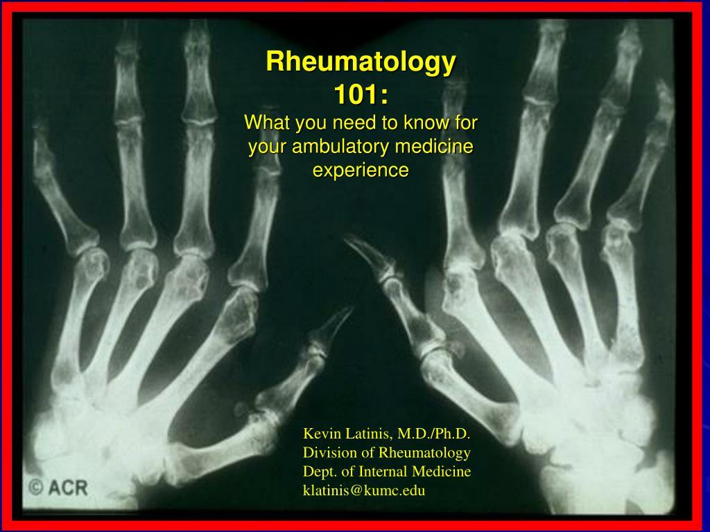 Rheumatology 101:
