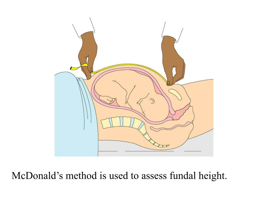McDonald's method is used to assess fundal height.
