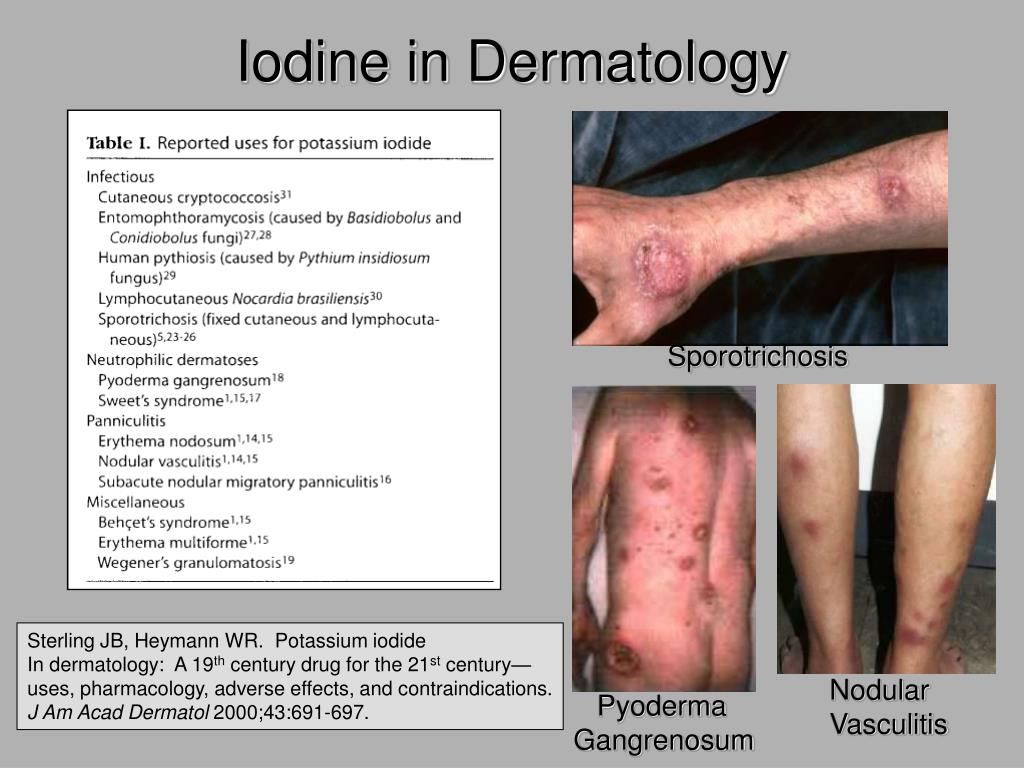 Iodine in Dermatology