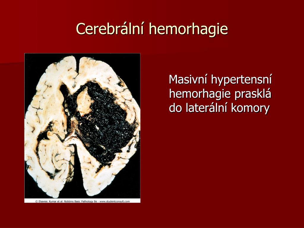 Cerebrální hemorhagie