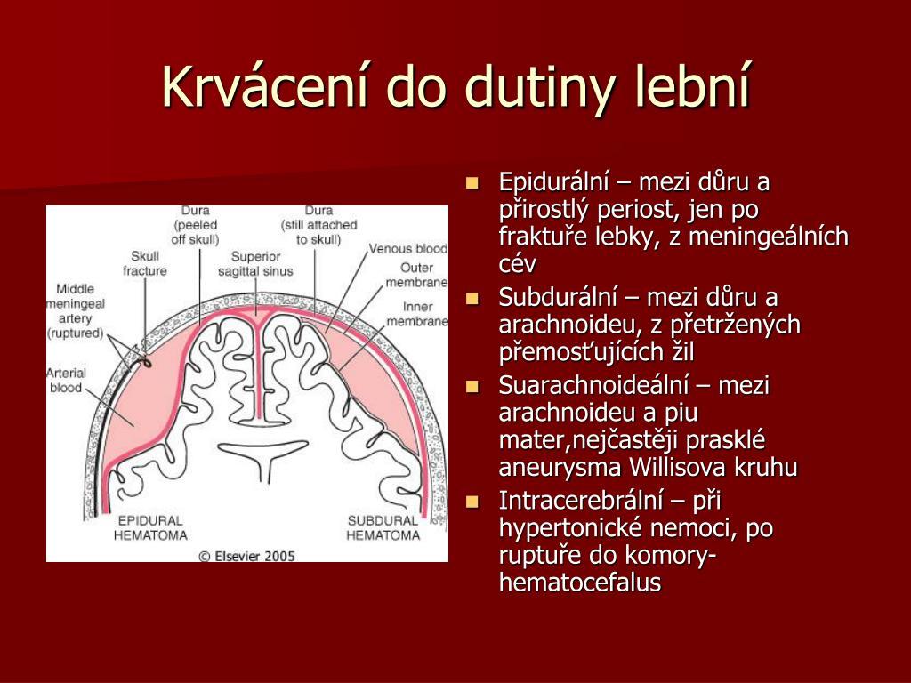 Krvácení do dutiny lební