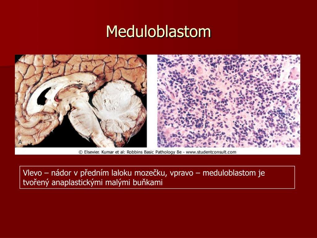Meduloblastom