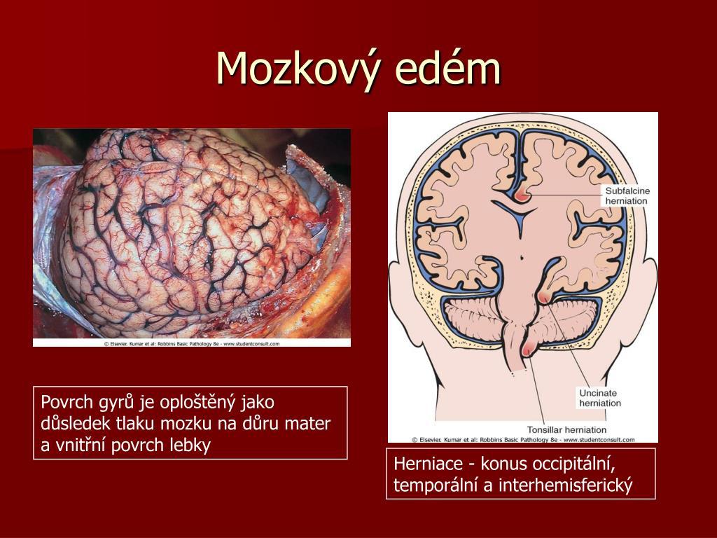 Mozkový edém