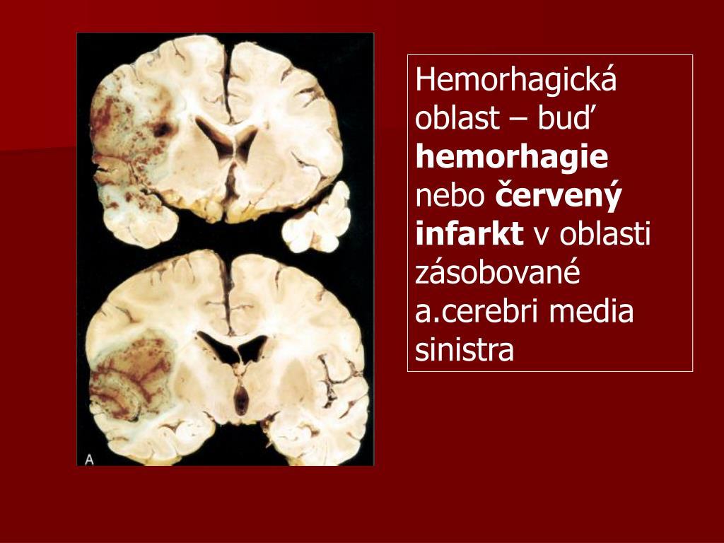 Hemorhagická oblast – buď