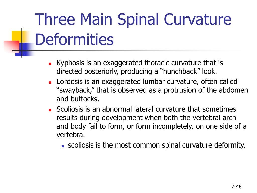 Three Main Spinal Curvature