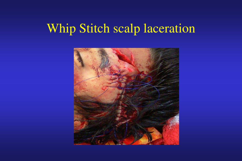 Whip Stitch scalp laceration