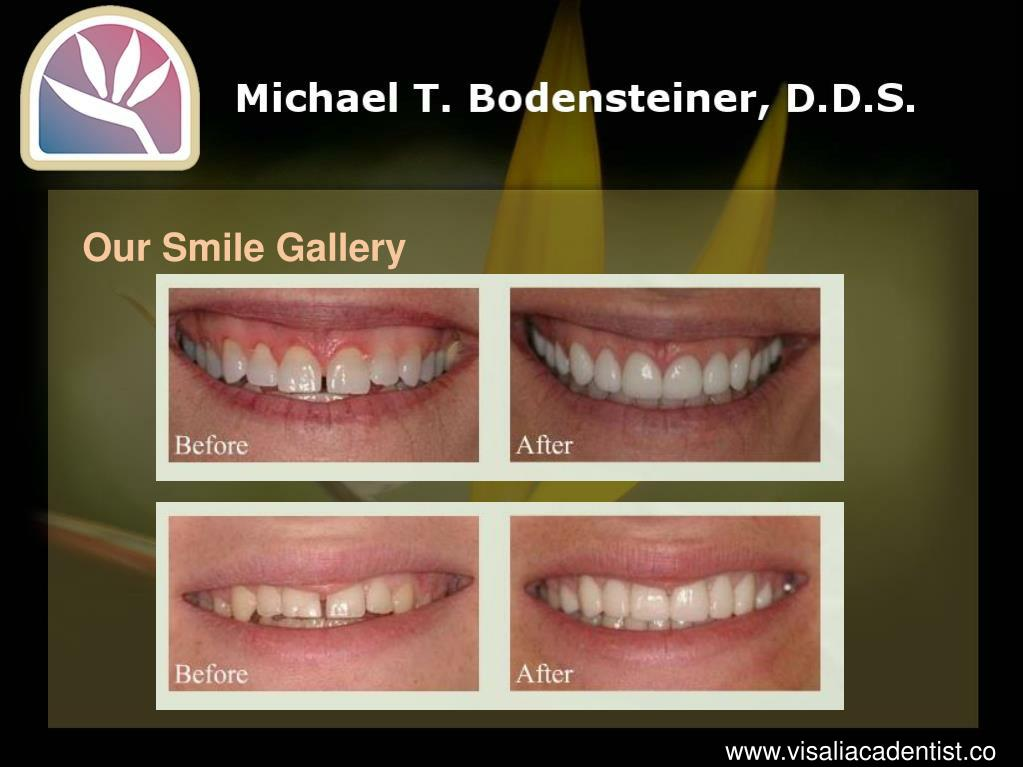 Our Smile Gallery