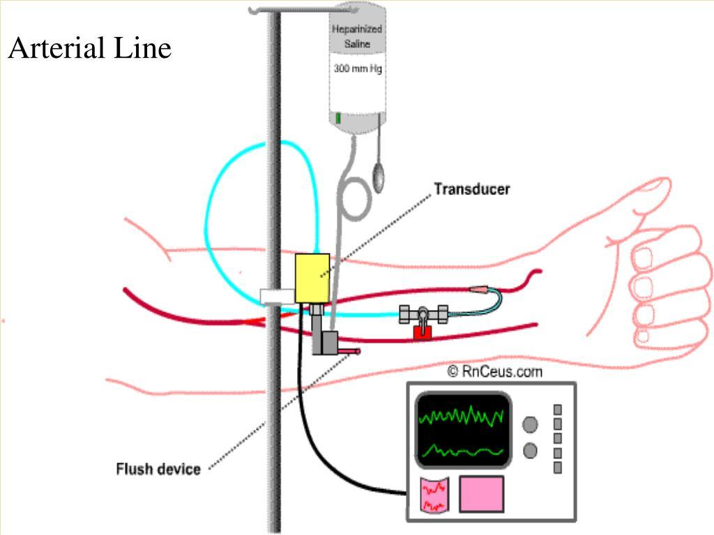 A Line Arterial Monitoring : Ppt hemodynamic monitoring powerpoint presentation id