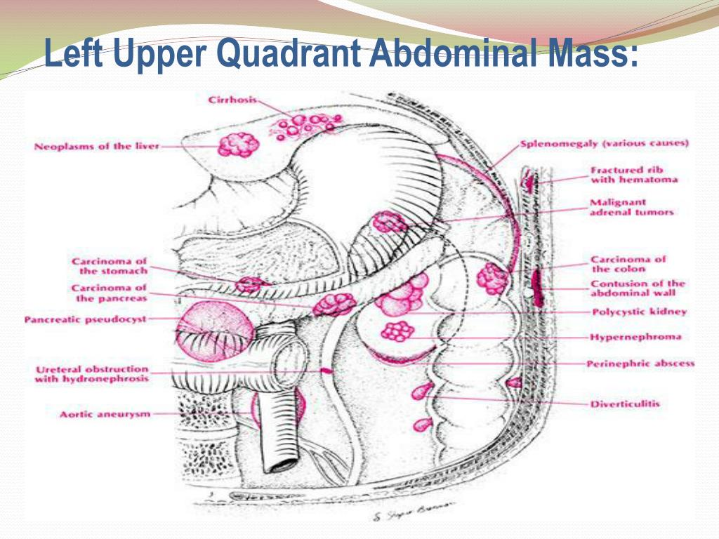 Ppt Left Upper Quadrant Pain And Masses Powerpoint