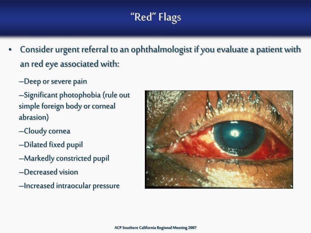 """""""Red"""" Flags"""
