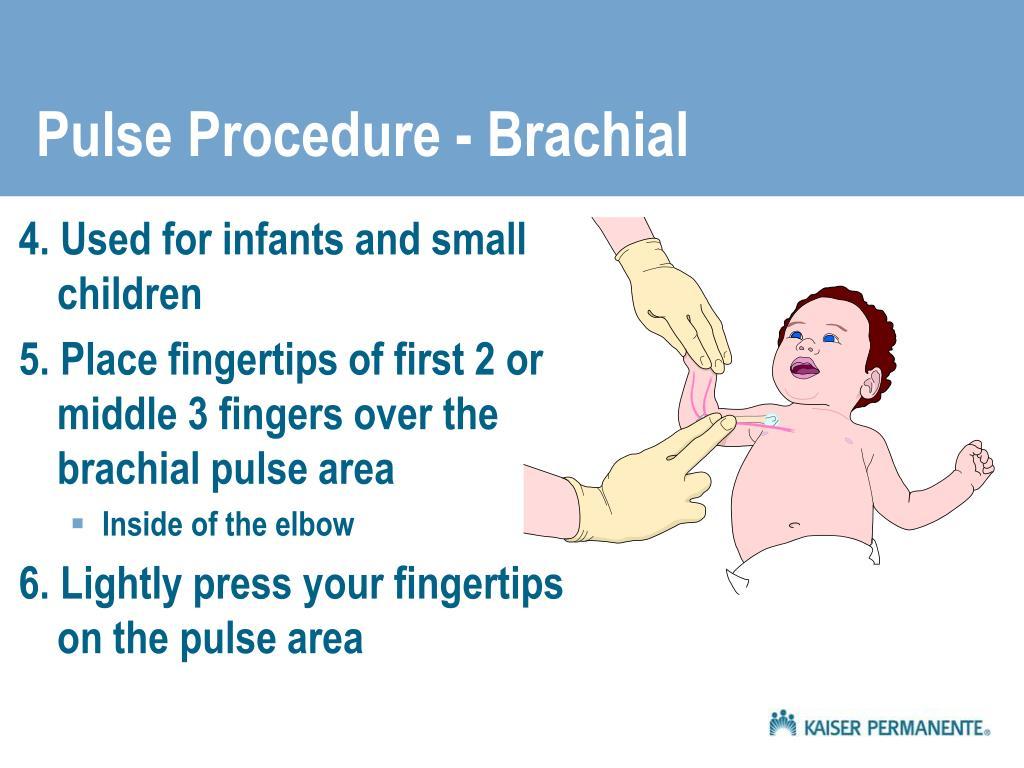 Pulse Procedure - Brachial