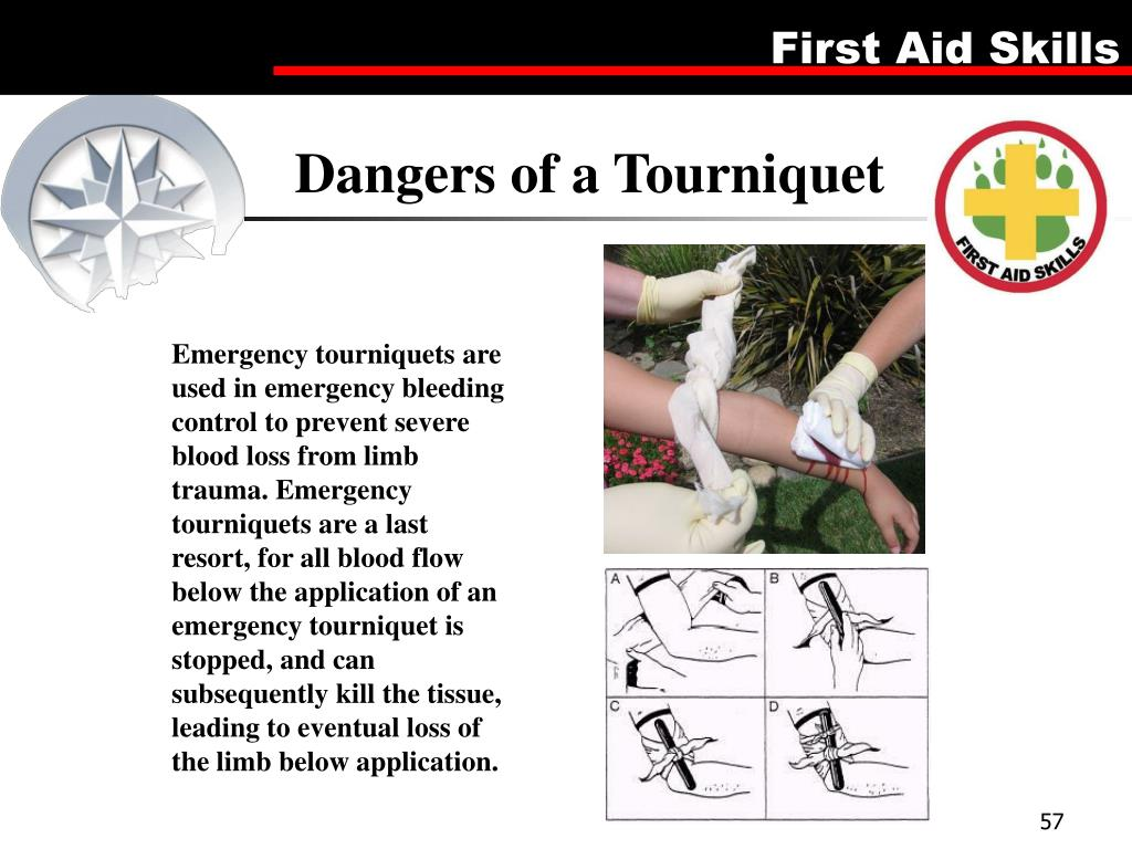 Dangers of a Tourniquet