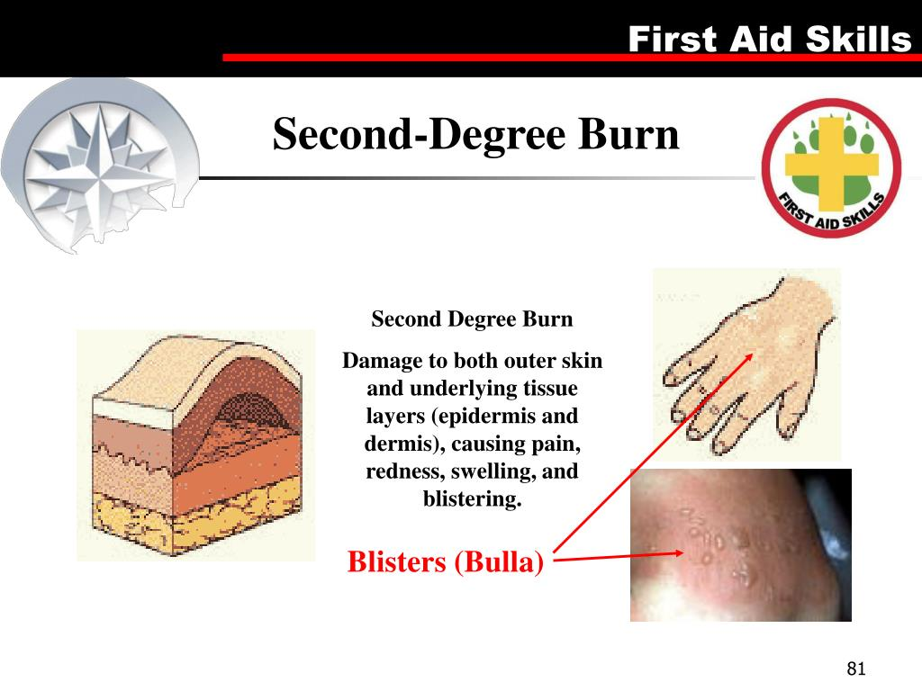 Second-Degree Burn