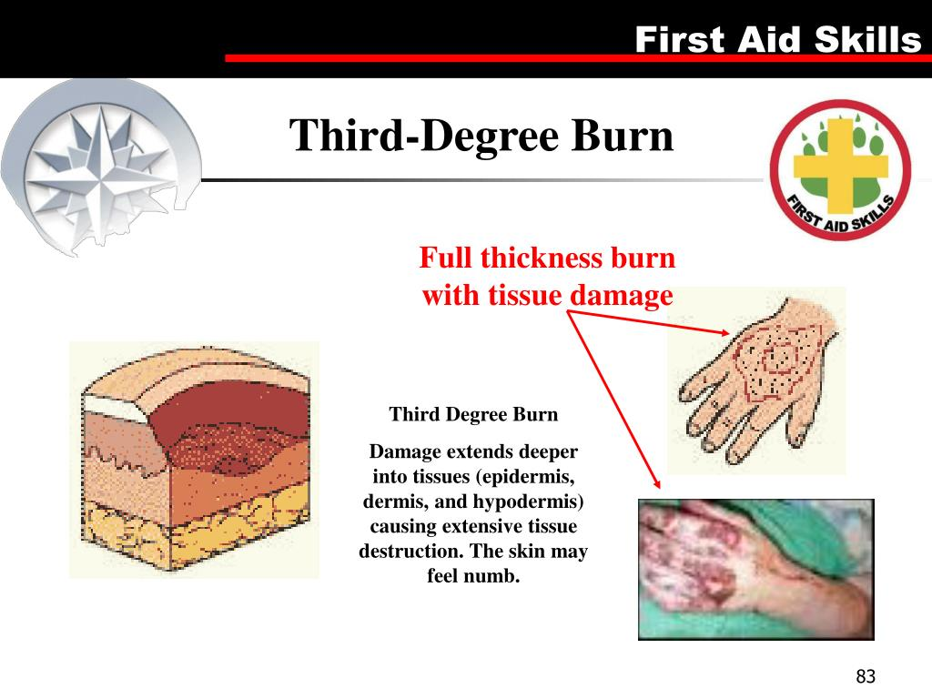 Third-Degree Burn