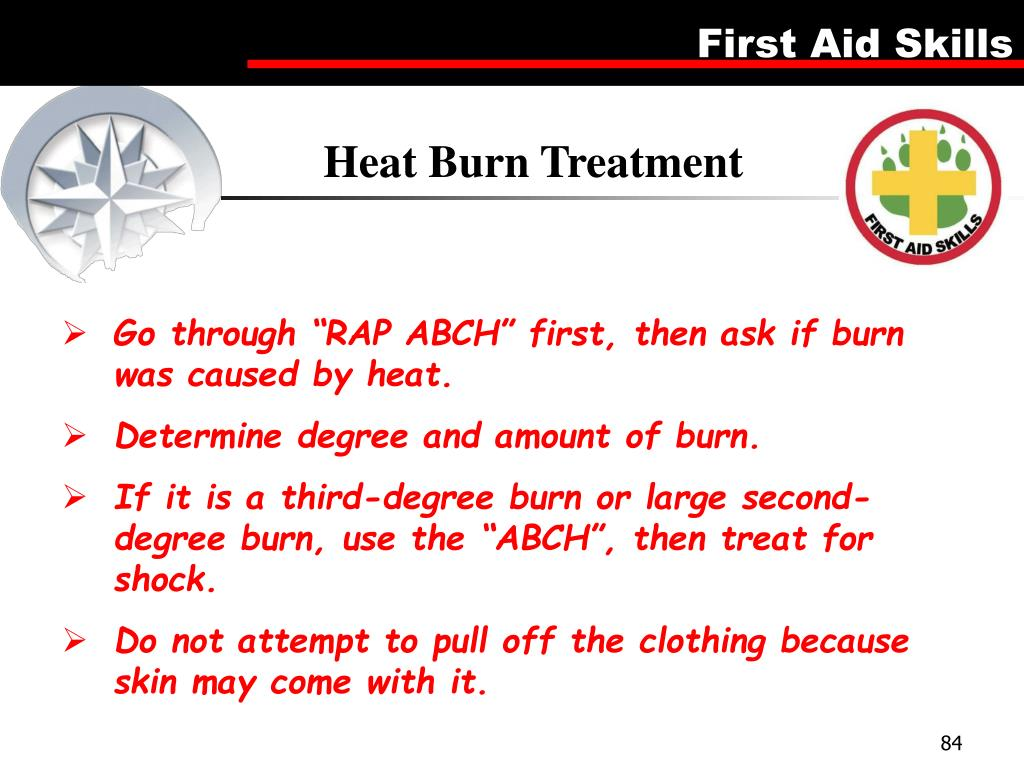 Heat Burn Treatment