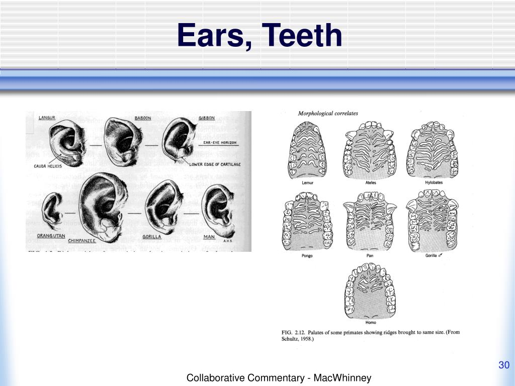 Ears, Teeth