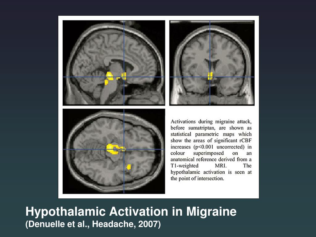 Hypothalamic Activation in Migraine