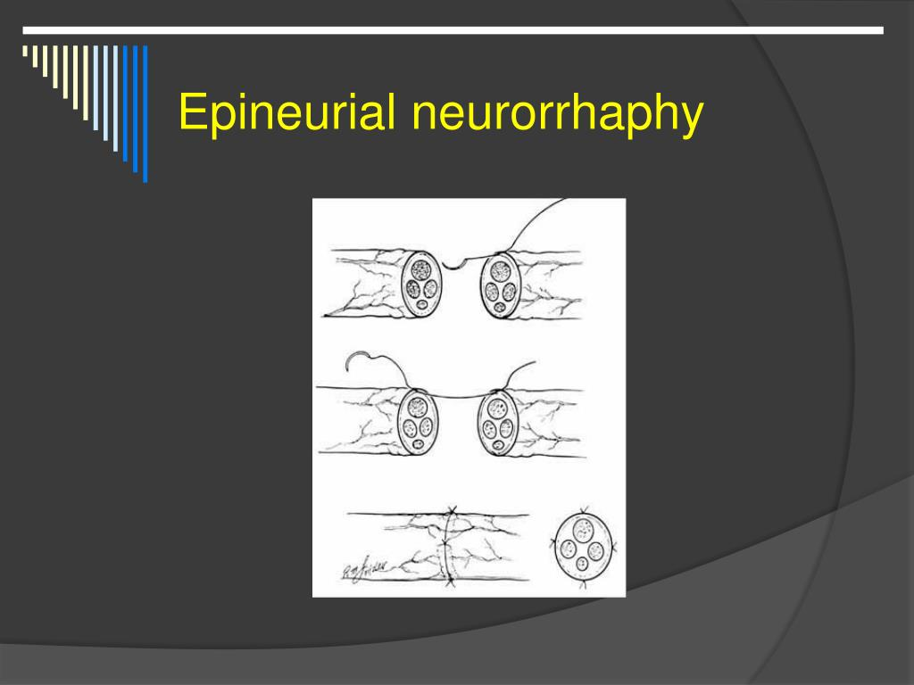 Epineurial neurorrhaphy