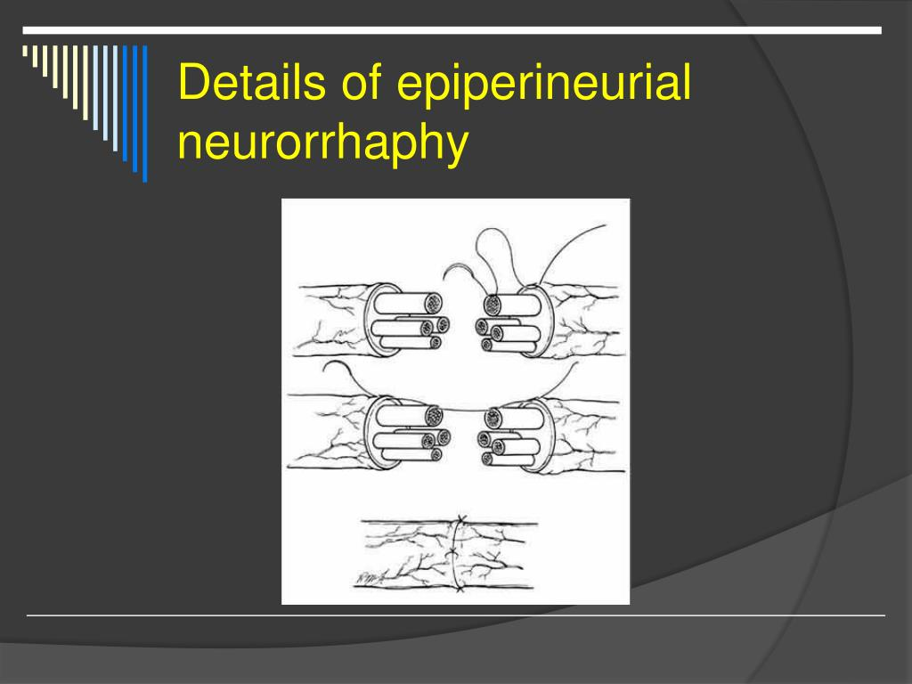 Details of epiperineurial neurorrhaphy
