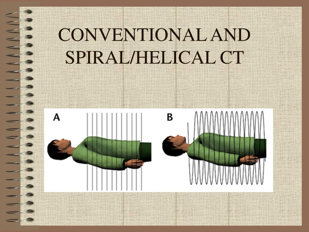 CONVENTIONAL AND  SPIRAL/HELICAL CT