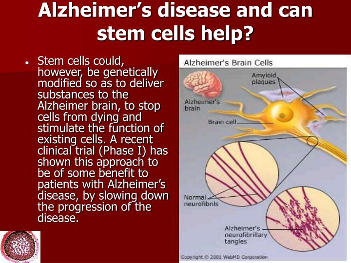 Alzheimer's disease and can stem cells help?