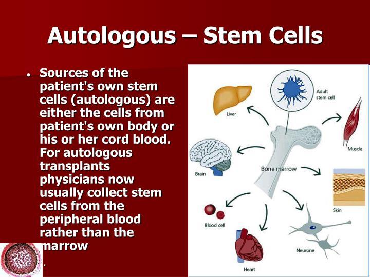Autologous – Stem Cells