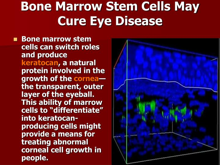 Bone Marrow Stem Cells May Cure Eye Disease