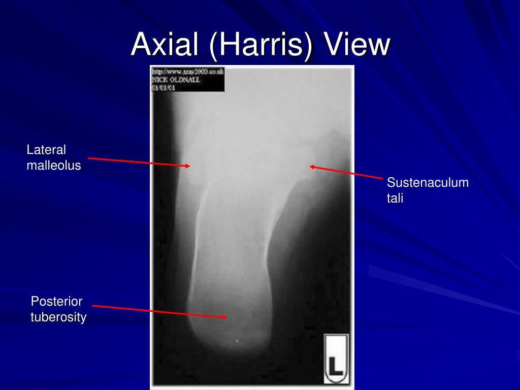 Axial (Harris) View