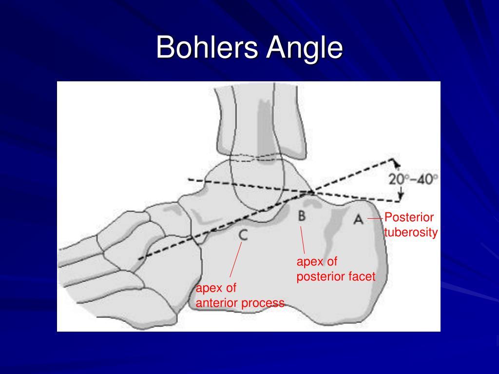 Bohlers Angle