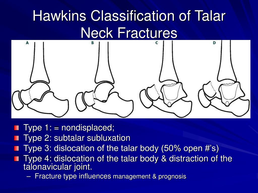Hawkins Classification of Talar Neck Fractures