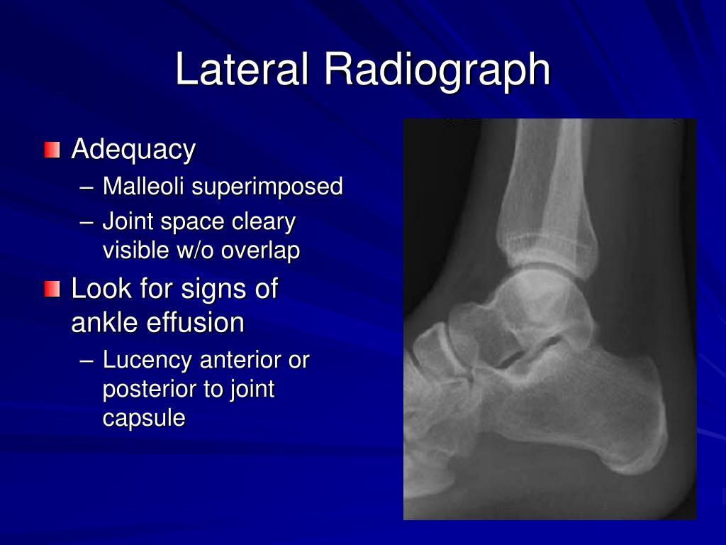 Lateral Radiograph