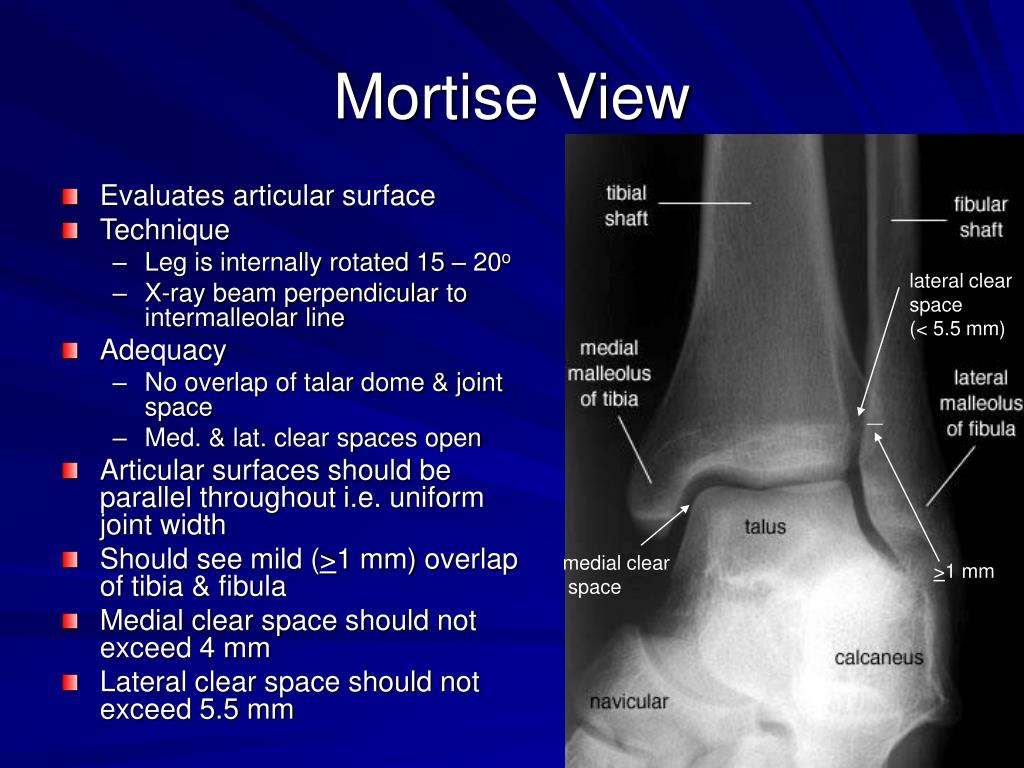 Mortise View