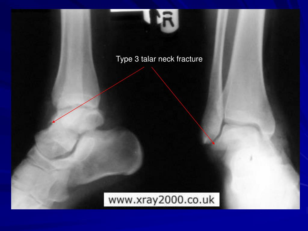 Type 3 talar neck fracture